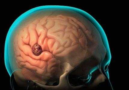 Как вовремя распознать онкологию мозга