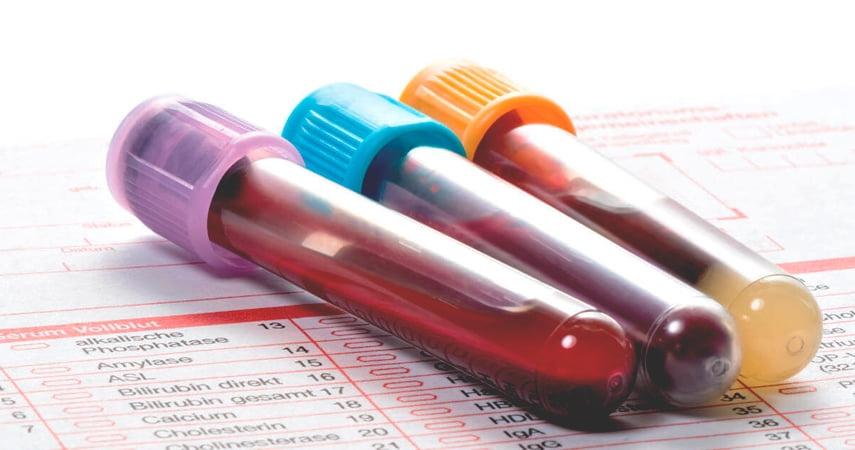 Анализы крови и других сред в Истре
